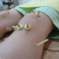 鍼+灸 膝