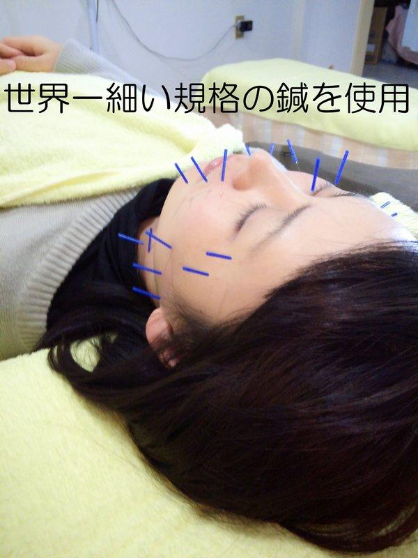 美容鍼のイメージ